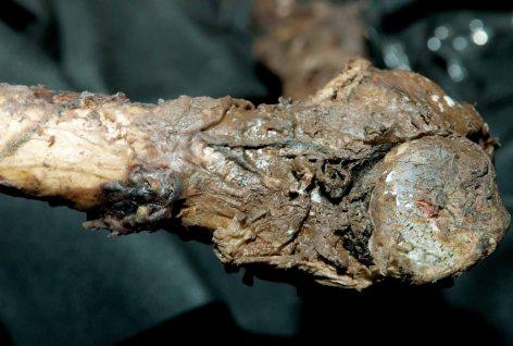 Franks Bone